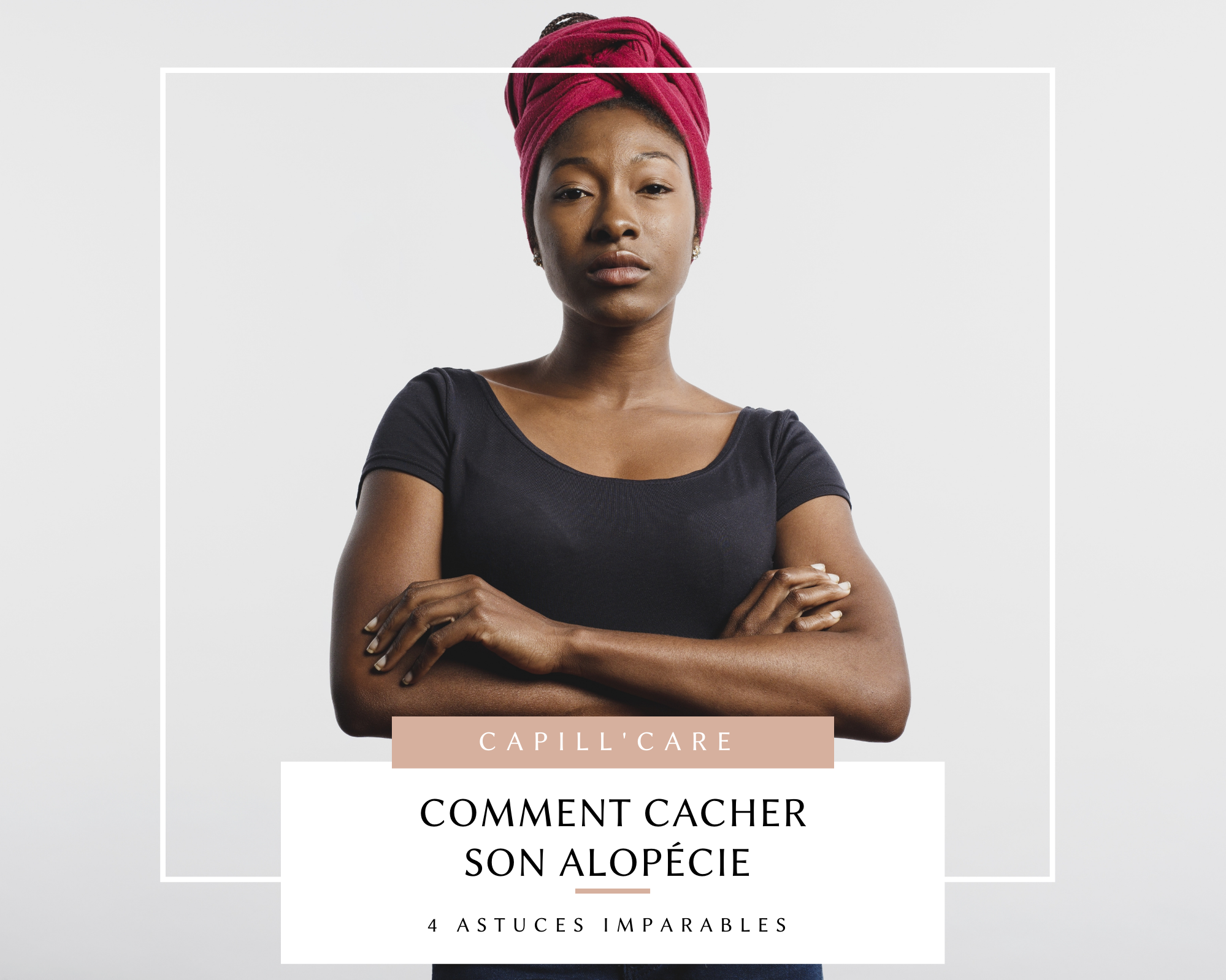 astuces-comment-cach-son-alopecieer